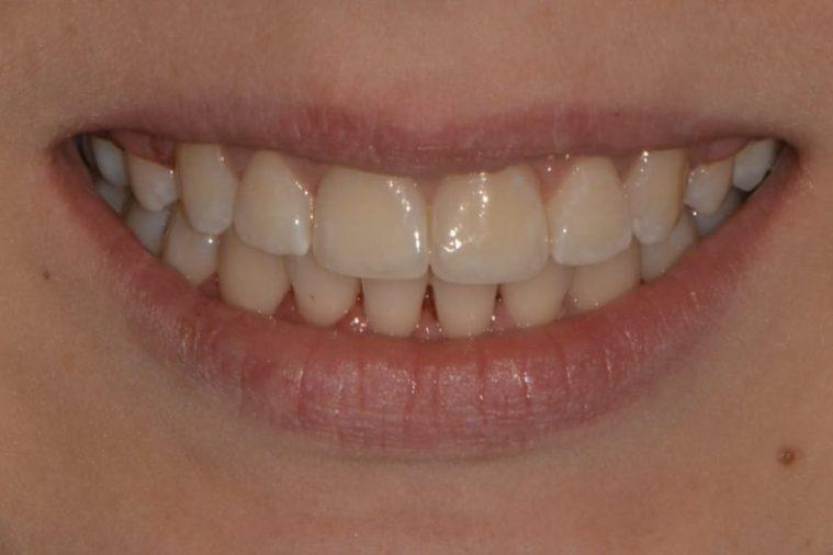 Наши работы – Ортодонтия